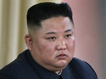 N. KOREA'S KIM JONG-UN REPORTEDLY IN A COMA ... Not Dead, But Close???